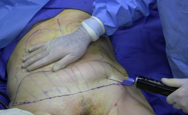 This is the cannula being inserted into a woman's stomach. They basically jam this violent instrument into your body.